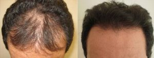 Hair Restoration in Turkey