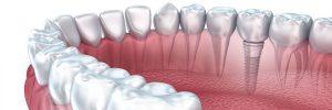 Dental Implants Turkey