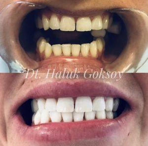 Teeth Whitening Turkey